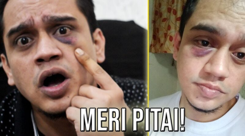 The shocking story of YouTuber Gyaani 2.0 attacked by a drunk man